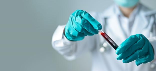 Examen de sangre de coronavirus, doctor sosteniendo un tubo de vidrio de prueba con sangre para el análisis covid-19.