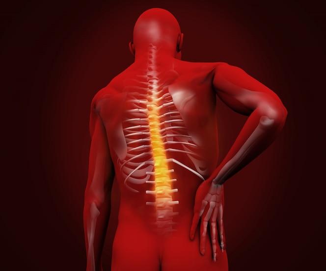 Figura digital roja con dolor de espalda resaltado