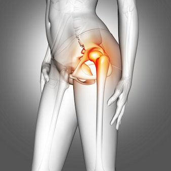 Figura médica femenina 3d con hueso de la cadera resaltada