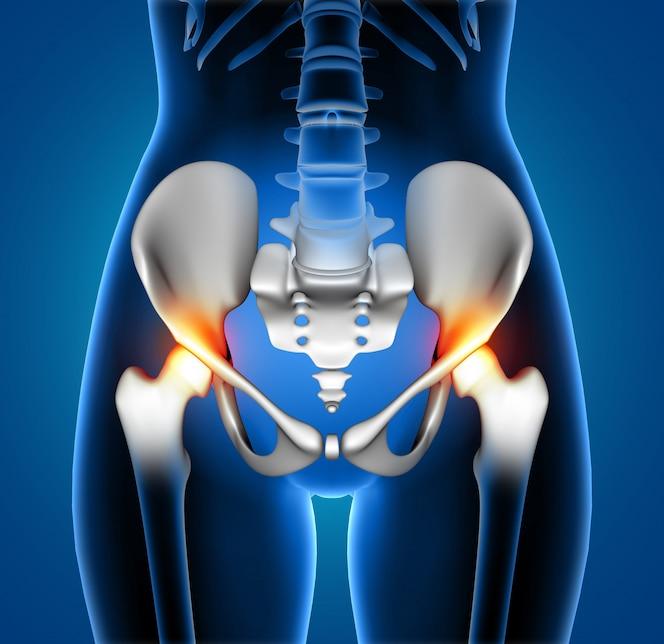 Figura médica femenina 3d con la columna vertebral destacó en el dolor