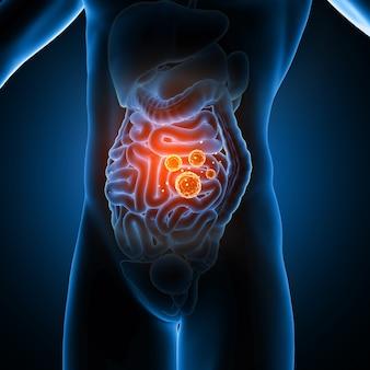 Figura médica masculina en 3d que muestra células virales en las tripas