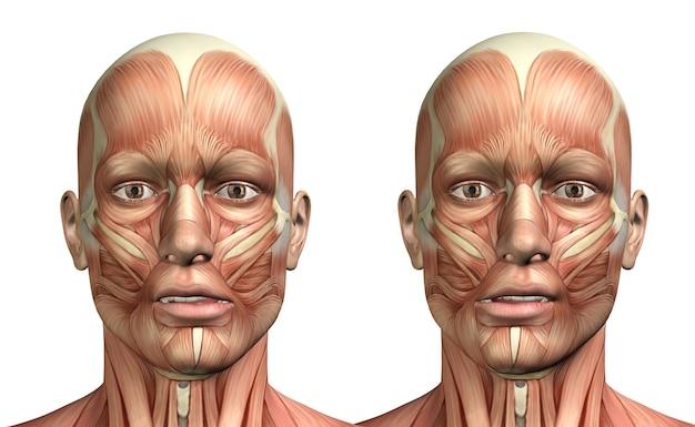 Figura médica masculina 3d que muestra desviación lateral mandibular.