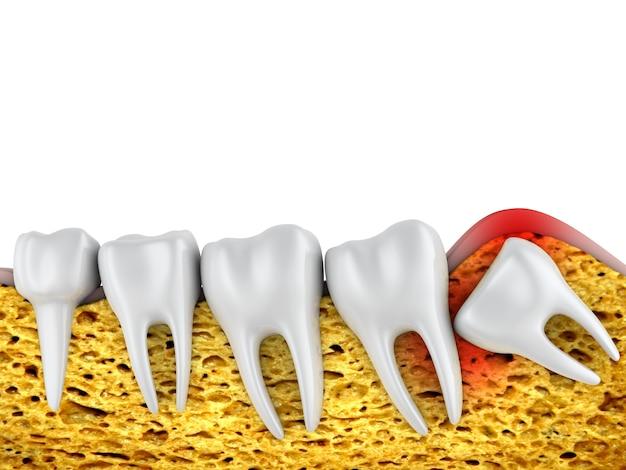 Fila dental de molares y una muela del juicio mal ubicada.