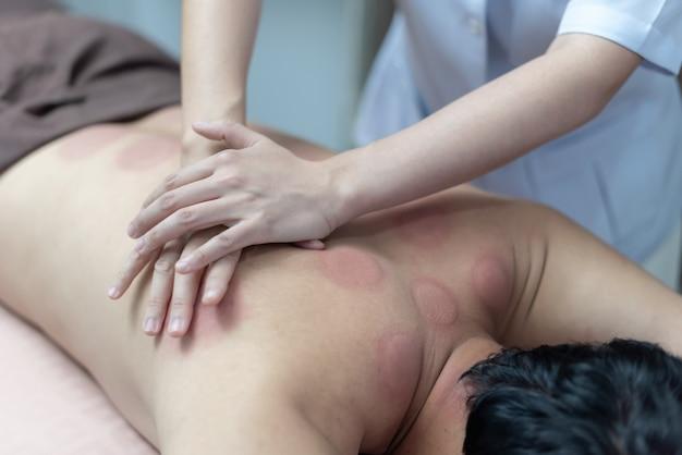 El fisioterapeuta está revisando las anomalías del cuerpo después del tratamiento con ventosas.