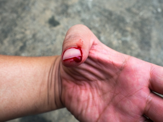 El flujo de sangre causado por la estimación no debe ser cauteloso al reparar la tubería.