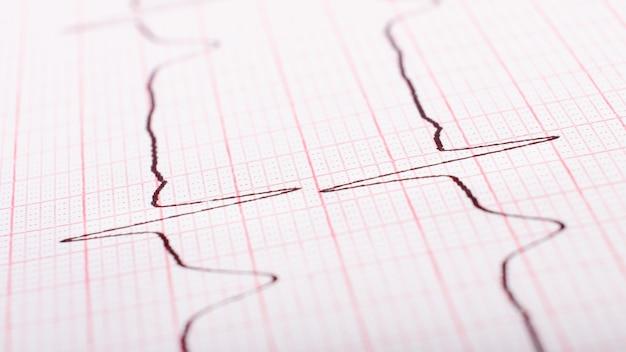 Frecuencia cardíaca en primer plano de cardiograma de papel.
