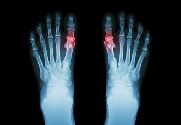 Gota, artritis reumatoide. radiografía de película tanto del pie como de la artritis