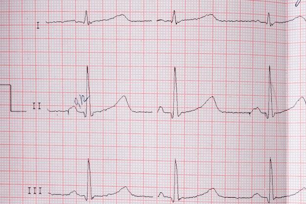 Gráfico de electrocardiograma ekg de corazón en papel especial. concepto de escaneo cardíaco, seguro médico, antecedentes médicos, examen.