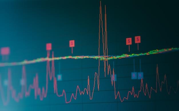 Gráfico de índice del análisis de datos financieros de mercado de valores