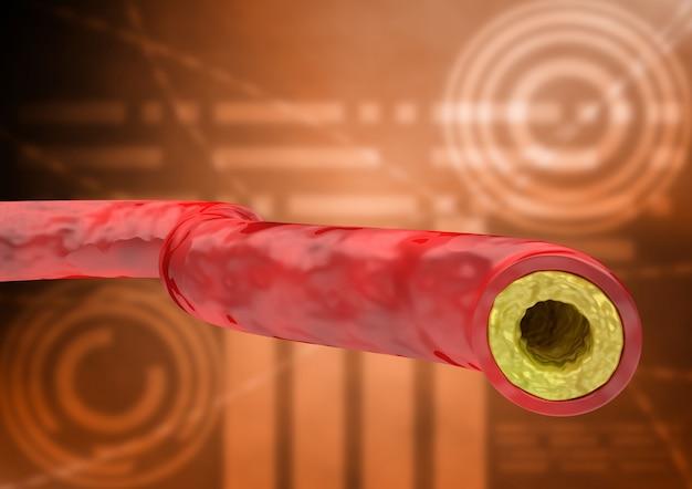 Gráfico con prueba de colesterol en paciente, resultado con vena y arteria con acumulación de grasas.