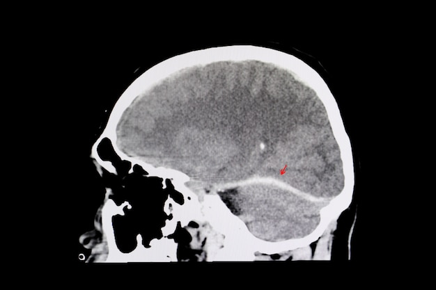 Hemorragia intracerebral