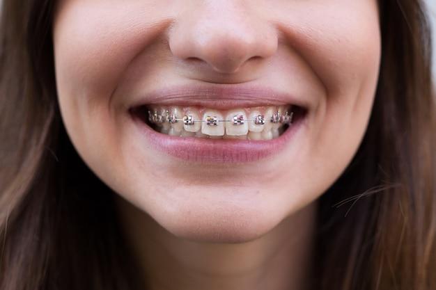 Hermosa joven con aparatos dentales de metal con dientes blancos