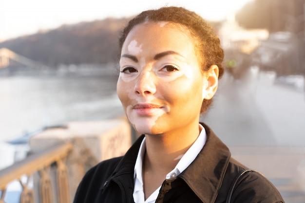Una hermosa joven de etnia africana con vitiligo de pie en la cálida calle de la ciudad de primavera vestido con abrigo negro