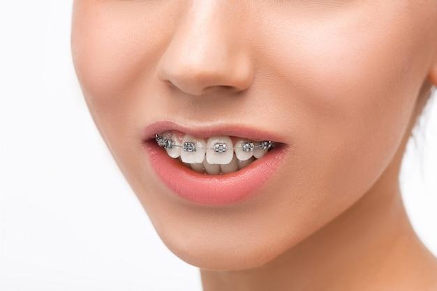 Hermosa mujer joven con aparatos dentales