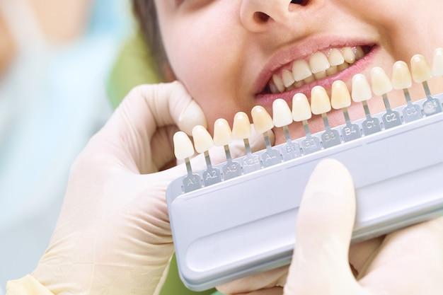 Hermosa sonrisa y dientes blancos de una mujer joven. a juego con los tonos de los implantes o el proceso de blanqueamiento dental. paleta de dientes.