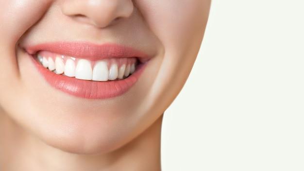 Hermosa sonrisa femenina después del procedimiento de blanqueamiento dental. cuidado dental. concepto de odontología