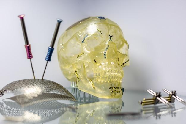 Herramientas y equipos para la reconstrucción ortopédica y quirúrgica del cráneo.