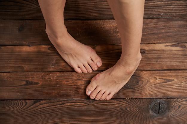 Hllux valgus en piernas femeninas de cerca en madera