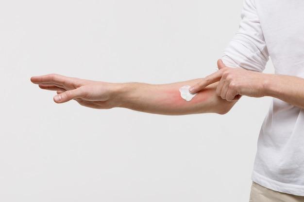 Hombre aplicando crema en la piel hinchada contra las picaduras de mosquitos