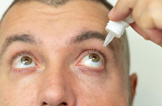 Hombre aplicando gotas para los ojos líquidos en el ojo para resolver el problema de la visión de cerca