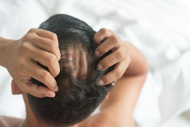 El hombre asiático está preocupado con el problema de pérdida de cabello en la cama en casa.