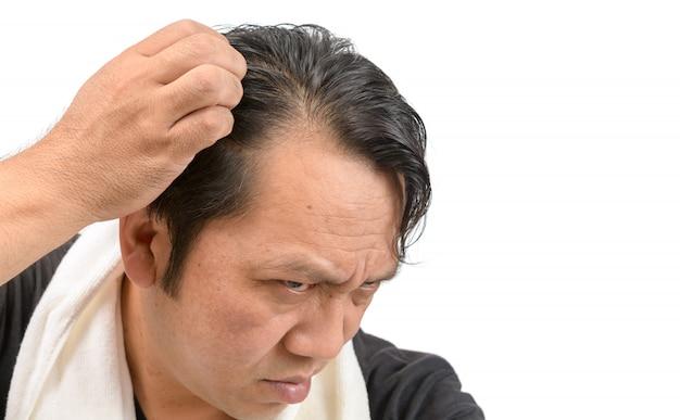 Hombre asiático preocuparse por su pérdida de cabello o alopecia aislada