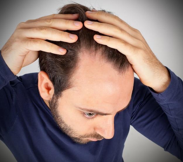 El hombre controla la caída del cabello.