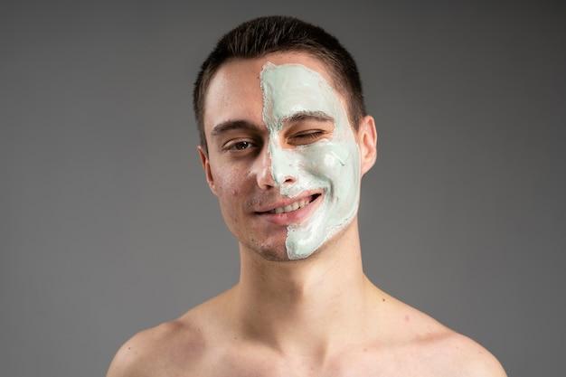 Hombre guapo joven confiado con su acné