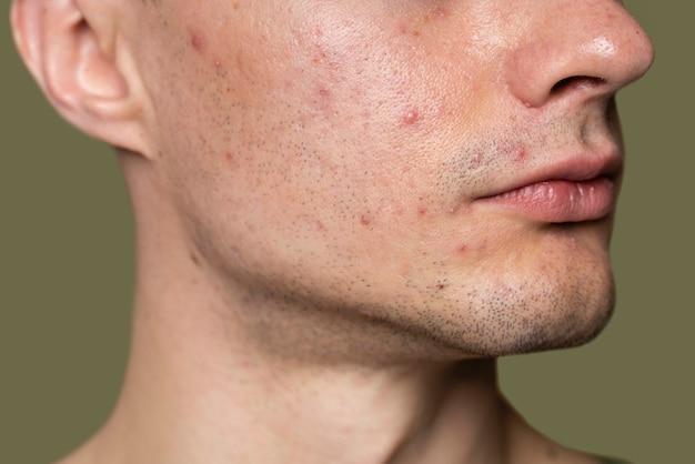 Hombre guapo seguro con acné