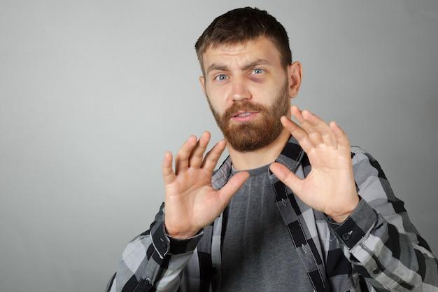 Hombre con moretón de ojo real