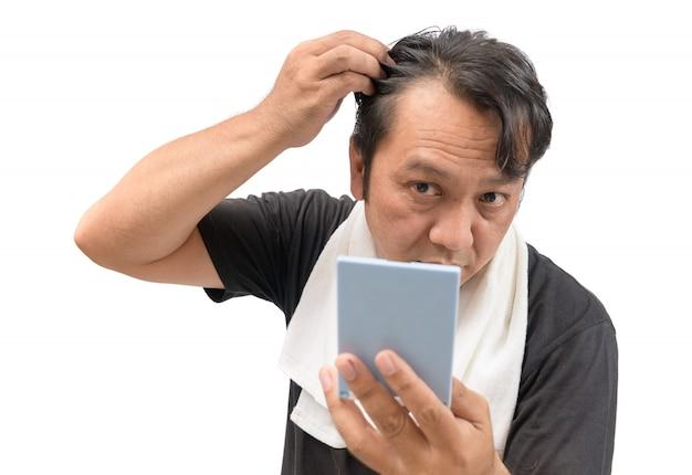El hombre se preocupa por su pérdida de cabello o alopecia