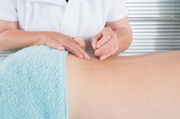 Hombre que recibe tratamiento de acupuntura en el spa de belleza