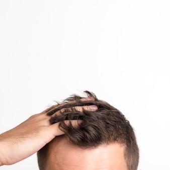 Hombre que tiene problemas de caída del cabello de pie contra el fondo blanco.