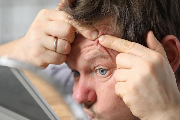 El hombre se sienta frente a un espejo y aplasta el acné
