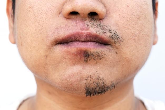Hombre tirado bigote por pinzas sobre fondo blanco