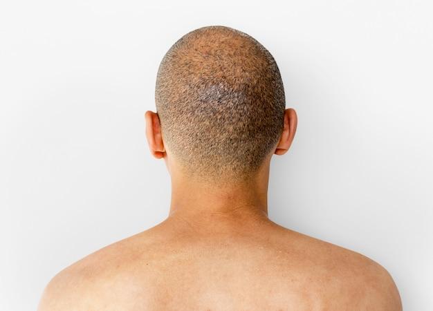 Un hombre de vuelta con skinhead