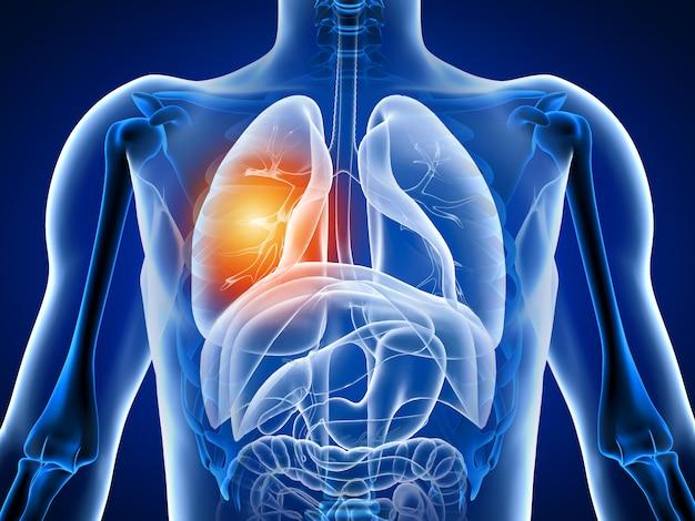 Ilustración 3d cuerpo humano con dolor pulmonar