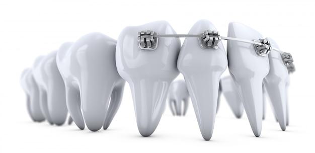 Ilustración de brackets en los dientes en blanco