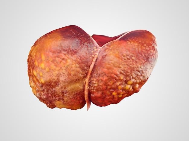 Ilustración realista de cirrosis del hígado humano.