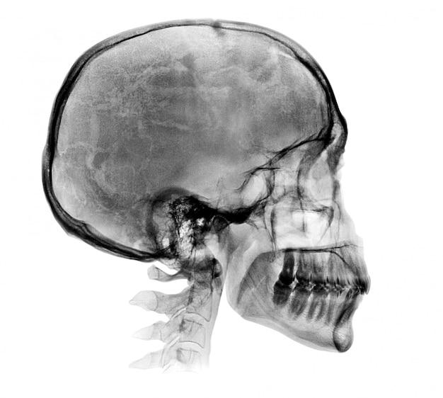 Imagen detallada de rayos x del cráneo humano