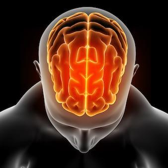 Imagen médica en 3d que muestra una figura masculina con cerebro resaltado.