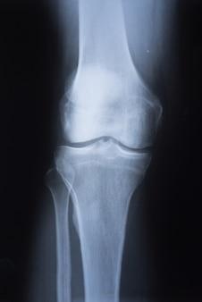 Imagen médica de rayos x de rodilla.