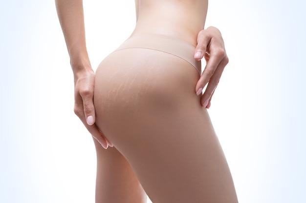 Imagen de muslos femeninos con estrías en la piel. corrección láser. técnica mixta