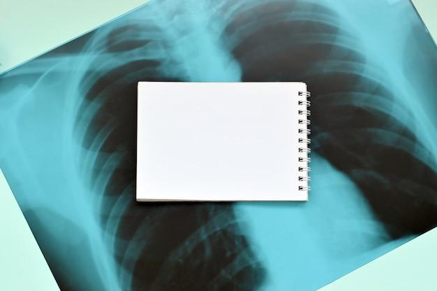 Imagen de la película de rayos x del cofre humano para un diagnóstico médico y una página vacía en blanco del bloc de notas