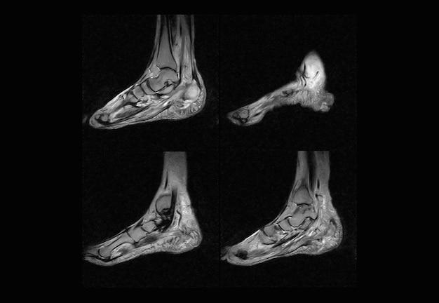 Imagen de rayos x de resonancia magnética y tomografía computarizada del pie