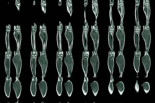 Imagen de resonancia magnética de la extremidad inferior de ambas piernas que muestra un tumor o masa en la pantorrilla de la pierna