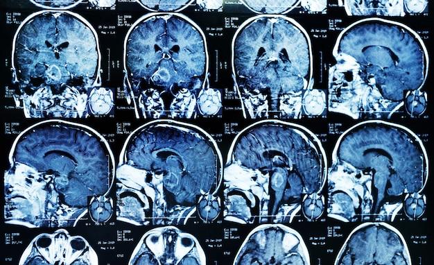 Imagen de resonancia magnética (irm) de un paciente con un tumor en el tronco encefálico. neurocirugía, cáncer, cirugía.