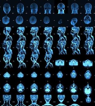 Imagen de resonancia magnética, resonancia magnética del cerebro.