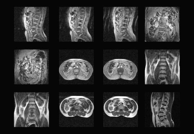 Imágenes de rayos x profesionales de tomografía computarizada y resonancia magnética de la columna dorsal