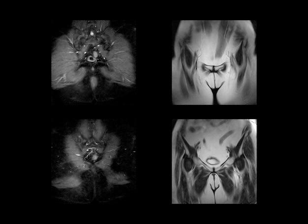 Imágenes de rayos x de resonancia magnética de cadera y pelvis y tomografía computarizada